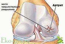 Симптомы ревматоидного артрита, лечение народными средствами