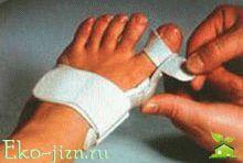 Артрит пальцев рук  суставов симптомы лечение народные