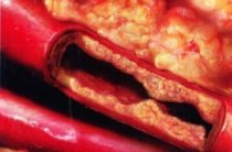 6 продуктов для профилактики атеросклероза сосудов: включайте в свой рацион хотя бы один из них ежедневно
