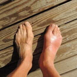 Воспаленный сустав на ноге