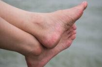 4 самых эффективных домашних средства от потливости ног