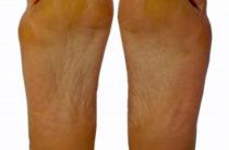 Признаками каких заболеваний в организме являются мозоли на ногах. Как по виду мозоли определить проблемный орган. 6 заболеваний, которые можно определить по мозолям